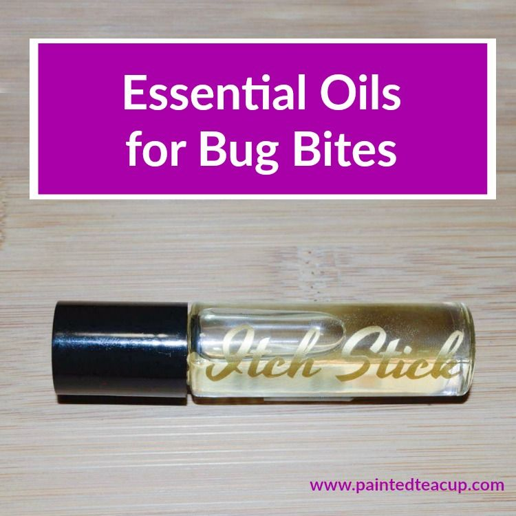 Essential oils for bug bites: bug bite itch-be-gone roller bottle recipe, soothing body butter, Correct-X ointment, bug bite balm & more!
